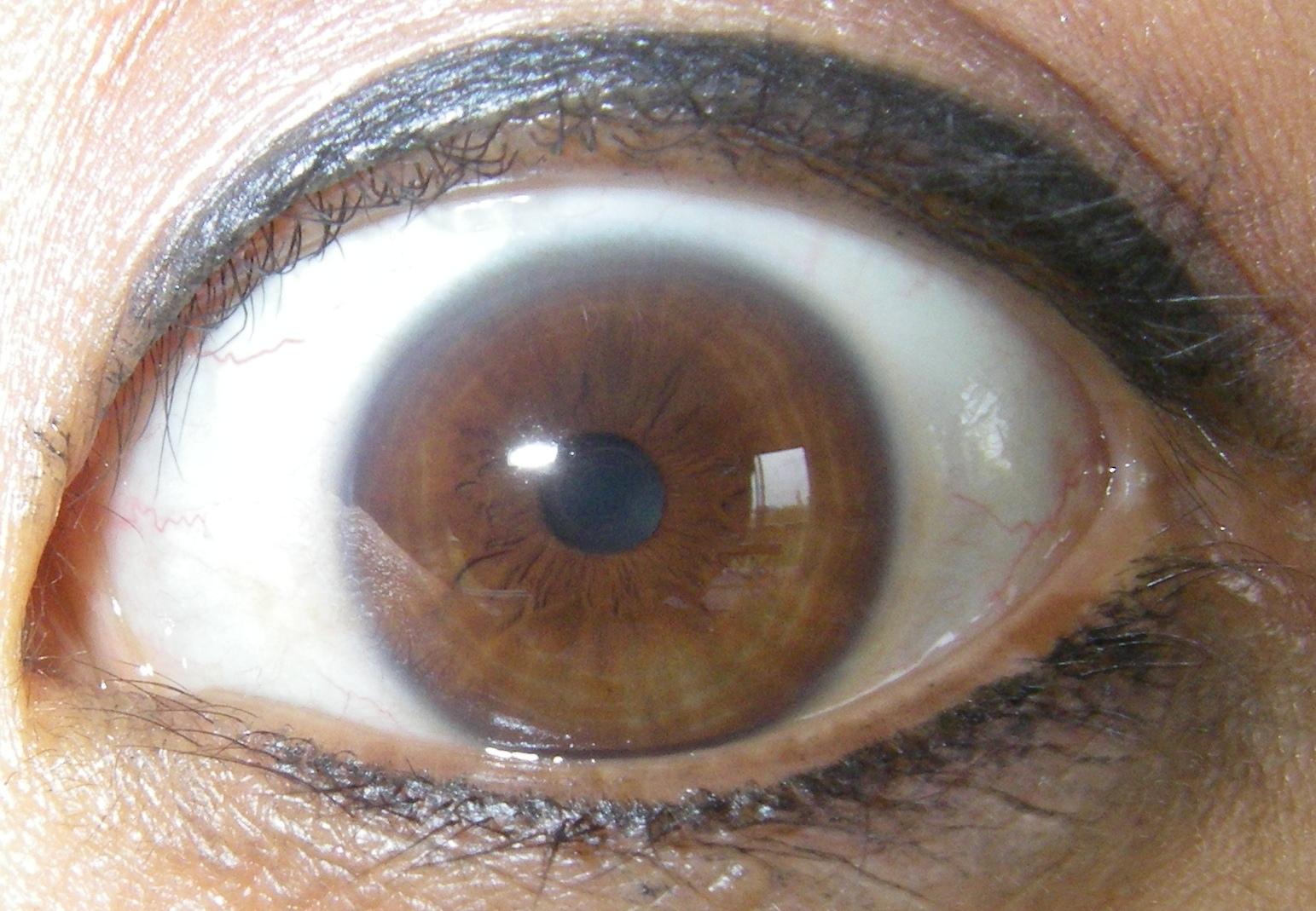 Brown Ring Iris